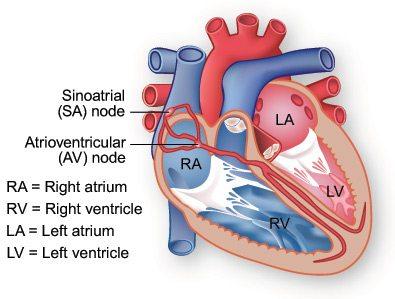 Aritmija srca 76