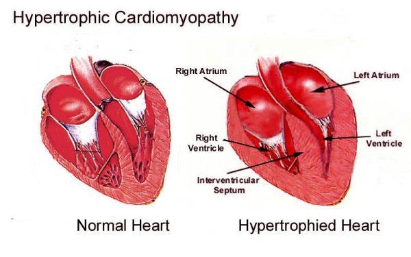 Hipertrofija – povećanje srca