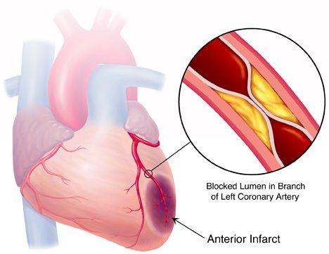Tromboza srčanih krvnih sudova