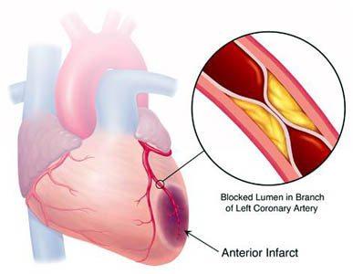 Zapaljenje unutrašnje srčane opne