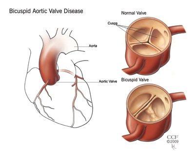 Oboljenje aortinih zalizaka