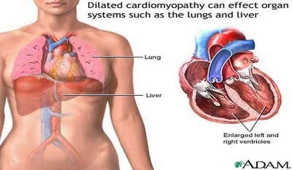 Dilatacija – Proširenje srca