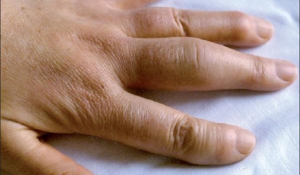 Gnojno zapaljenje na prstima usled povrede i infekcija na rukama