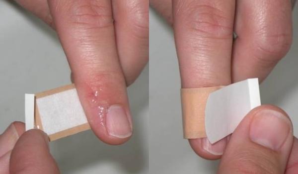 Otvorene povrede (posekotine, rane od vatrenog oruzja, ujed psa…)