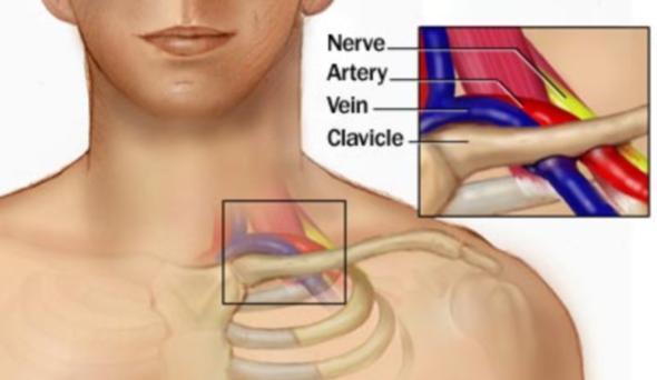 Povrede unutrašnjih organa grudnog koša (simptomi, pomoć, lečenje)