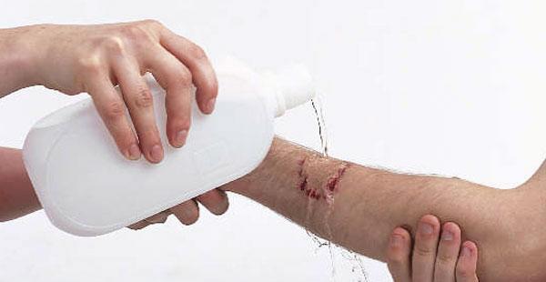 Prva pomoc kod ranjavanja