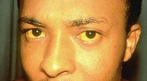 Zarazna žutica (Hepatitis A – bolest prljavih ruku)