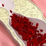 Arterioskleroza i ateroskleroza