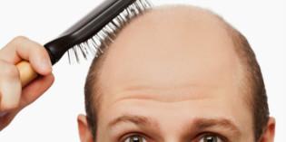 Prirodni lekovi protiv opadanja kose