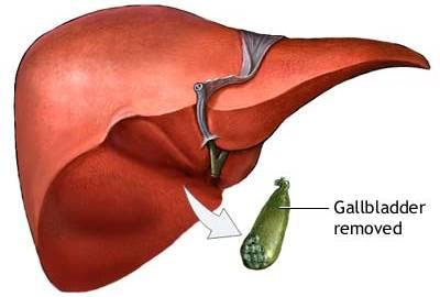 Akutno zapaljenje jetre