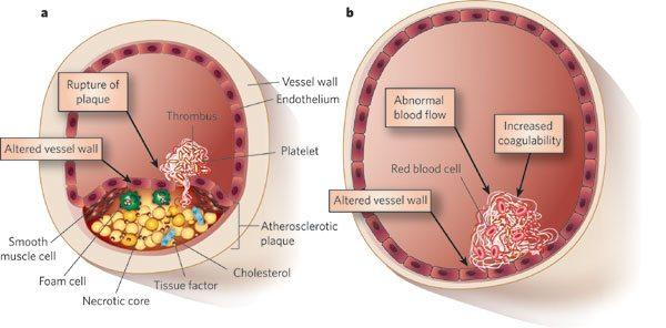 Tromboza arterija
