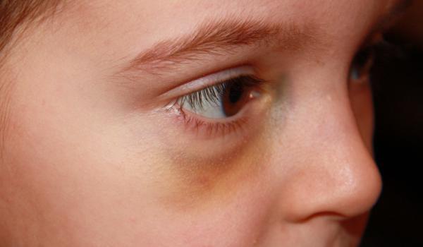 Prva-pomoc-kod-povrede-oka