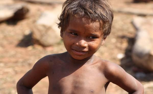 Pothranjenost