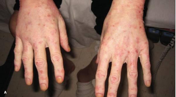 pelagra simptomi
